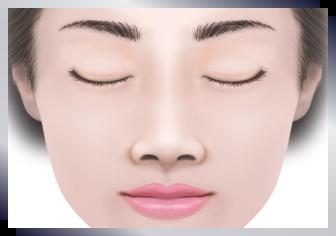 鼻翼縮小(小鼻縮小)|鼻の整形なら鼻の専門医 美容外科・形成外科 ...
