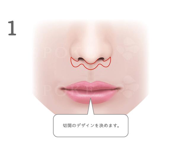 唇 ぶつけ た 腫れ
